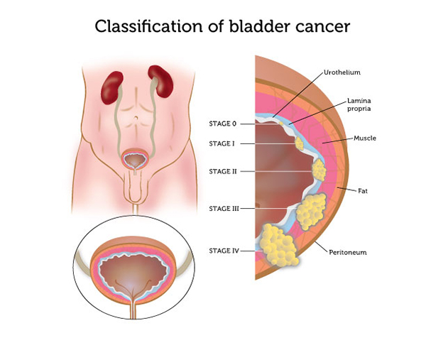 illustration of bladder cancer stages