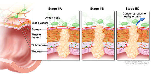 stage II rectal cancer illustration