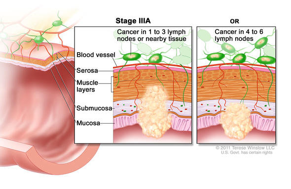 stage IIIa rectal cancer illustration