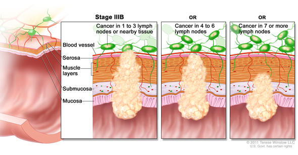 stage IIIb rectal cancer illustration