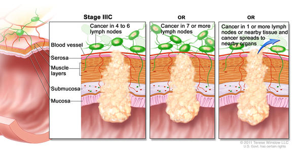 stage IIIc rectal cancer illustration