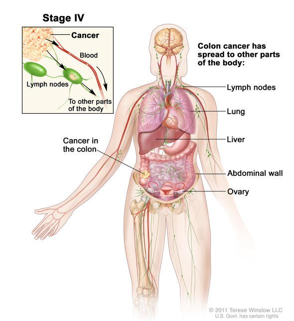 How We Diagnose Colon Cancer Dana Farber Cancer Institute Boston Ma