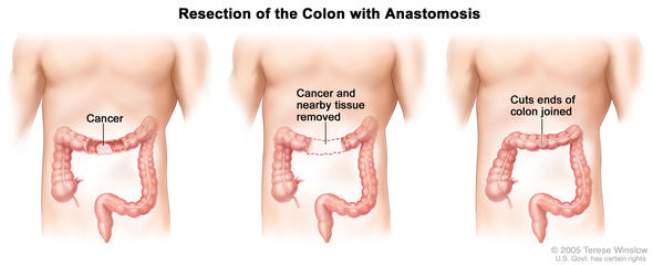 colon resection illustration
