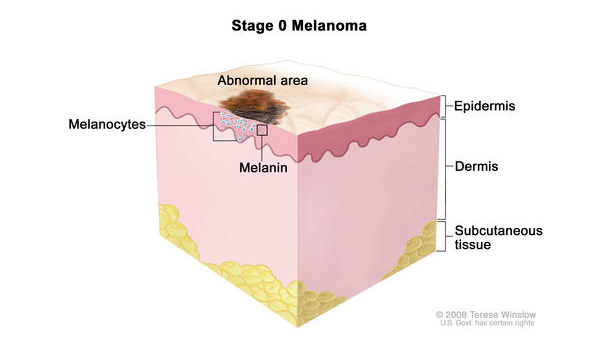 Stage 0 melanoma in situ. Abnormal melanocytes are in the epidermis (outer layer of the skin).