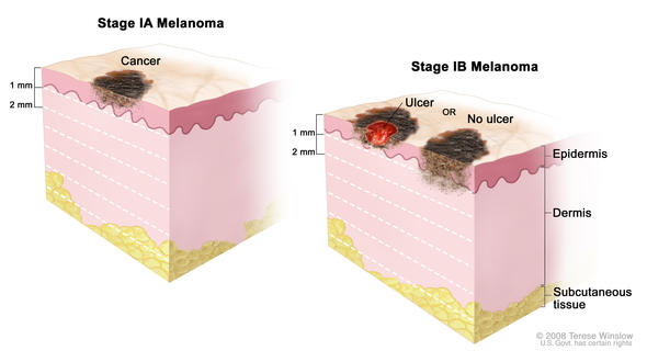 Stage I melanoma. In stage IA, the tumor is not more than 1 millimeter thick, with no ulceration (break in the skin). In stage IB, the tumor is either not more than 1 millimeter thick, with ulceration, OR more than 1 but not more than 2 millimeters thick, with no ulceration. Skin thickness is different on different parts of the body.