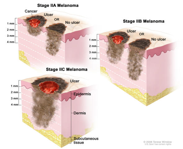Stage II melanoma. In stage IIA, the tumor is either more than 1 but not more than 2 millimeters thick, with ulceration (break in the skin), OR it is more than 2 but not more than 4 millimeters thick, with no ulceration. In stage IIB, the tumor is either more than 2 but not more than 4 millimeters thick, with ulceration, OR it is more than 4 millimeters thick, with no ulceration. In stage IIC, the tumor is more than 4 millimeters thick, with ulceration. Skin thickness is different on different parts of the body.