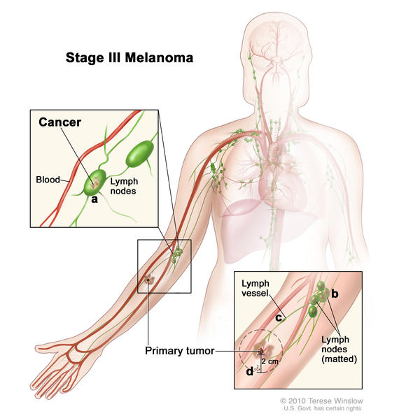 Stage III melanoma. The tumor may be any thickness, with or without ulceration (a break in the skin), and (a) cancer has spread to one or more lymph nodes; (b) lymph nodes with cancer may be joined together (matted); (c) cancer may be in a lymph vessel between the primary tumor and nearby lymph nodes; and/or (d) very small tumors may be found on or under the skin, not more than 2 centimeters away from the primary tumor.