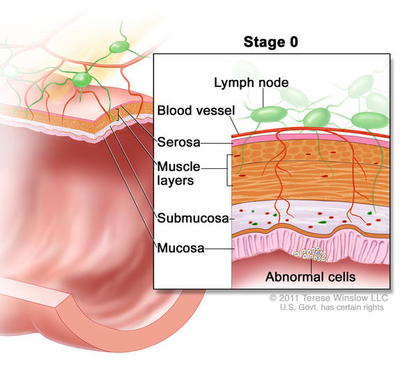stage 0 rectal cancer illustration