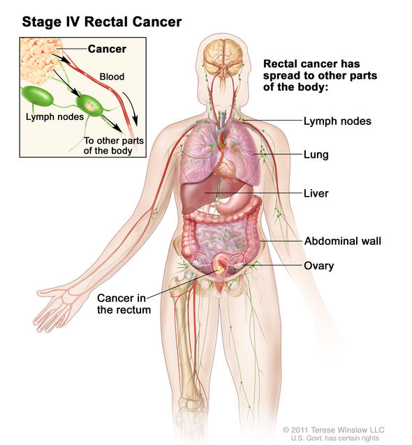 stage IV rectal cancer illustration