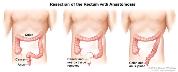 resection of the rectum with anastomosis