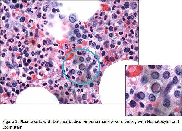 figure 1 for multiple myeloma case study