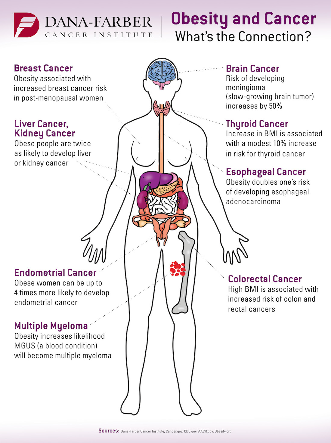 obesity and cancer infographic