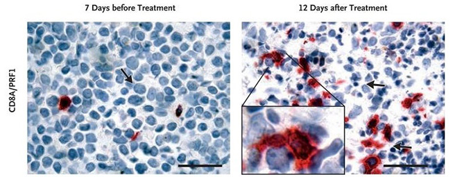 Immunohistochemical Evidence of In Situ Leukemic Response to Ipilimumab