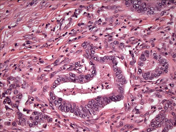 Colon Cancer Cells